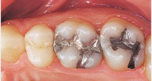 Dentalni amalgam