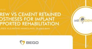 "Tečaj ""Screw vs Cement Retained Prostheses for Implant Supported Rehabilitation"" – Bihać, 17.  april"
