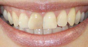 Izbjeljivanje nevitalnih zuba